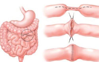 Cirurgia para Doença de Crohn, qual a indicação?